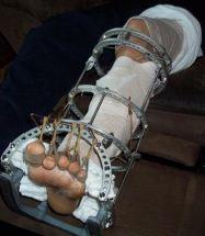 Employee's left leg after 5 surgeries